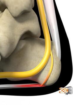 Irritation d'un nerf en 3D