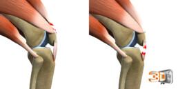 Déchirure Musculaire en 3D