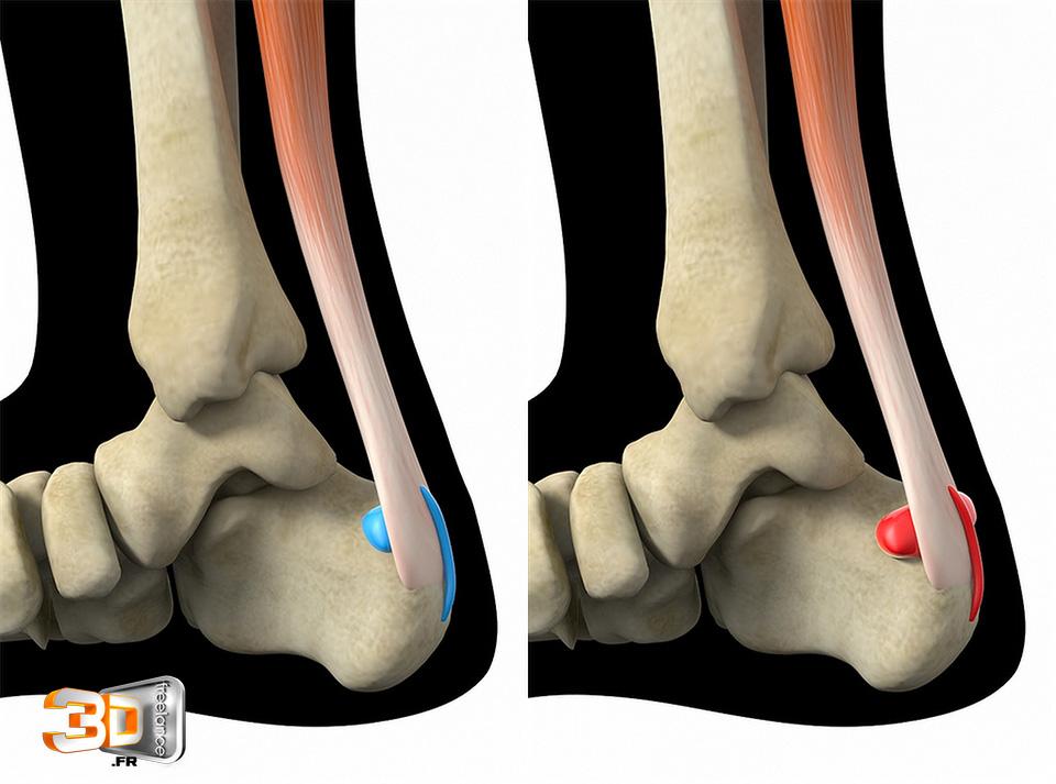 Irritation du tendon d'Achille
