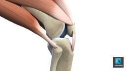 déchirure du tendon genoux - illustration médicale